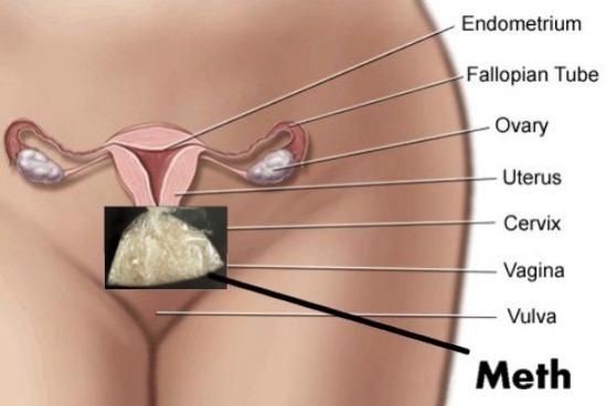 pelvis-meth1